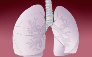 Developing lung cancer prevention strategies